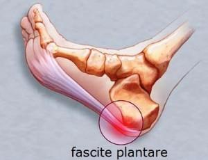 fascite_plantare